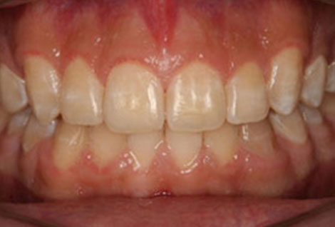 Before and after photo Orthodontics Case 04