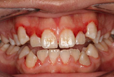 Before and after photo Orthodontics Case 03