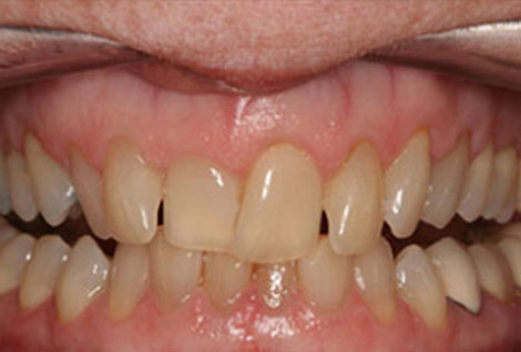 Before and after photo Orthodontics Case 01