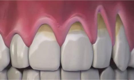 Chao Pinhole Gum Rejuvenation – Chao Pinhole Surgical Technique