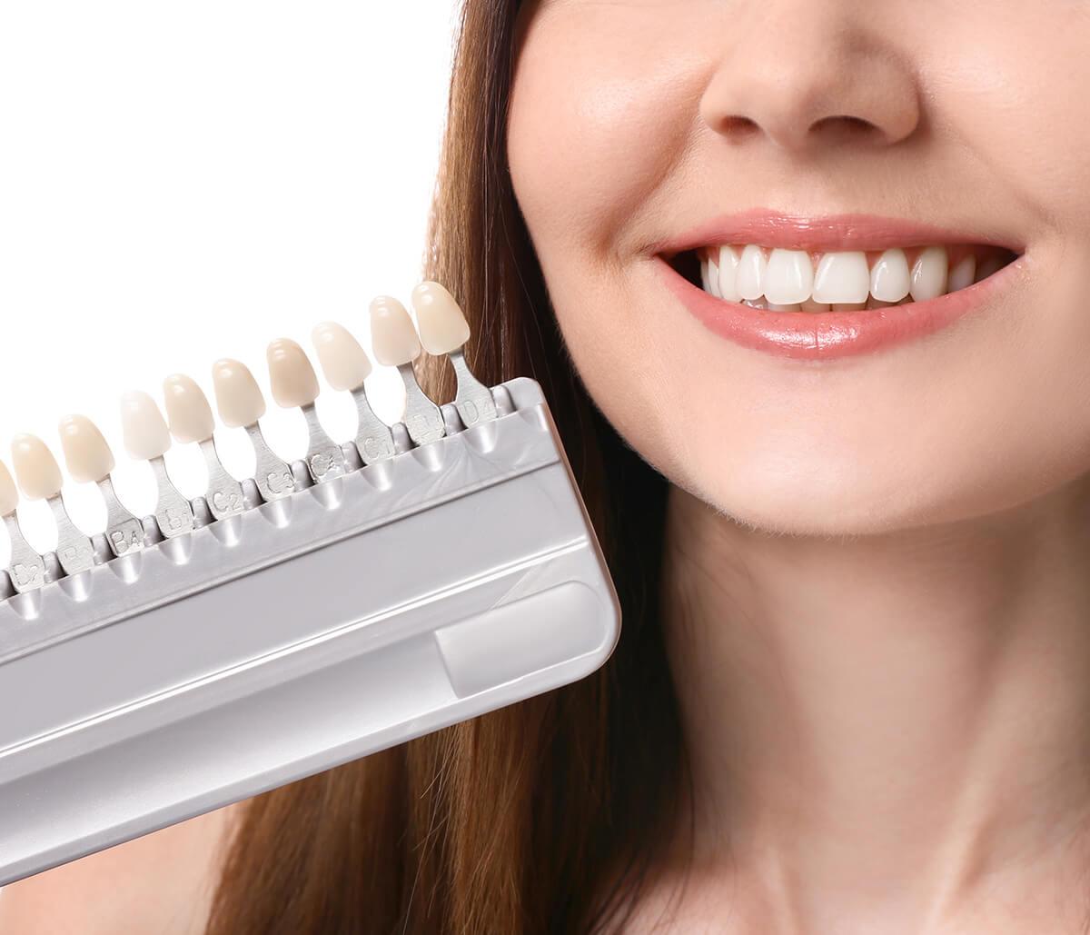 Veneers for Crooked Teeth at Dental Health & Aesthetics Center in Aliso Viejo CA Area