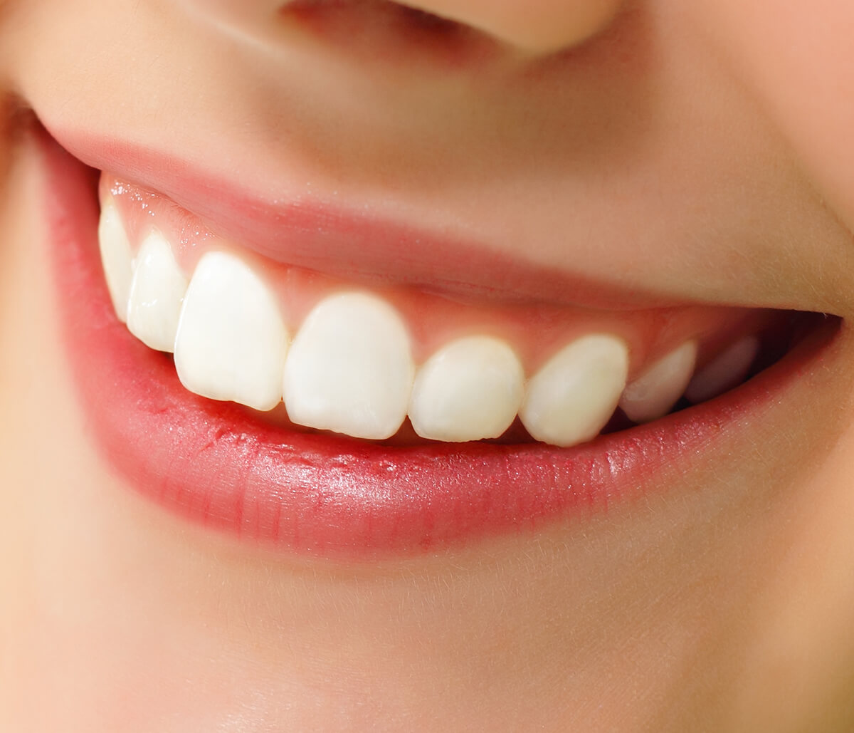 What is a Gummy Smile, and What Are the Treatment Options in Aliso Viejo CA Area?