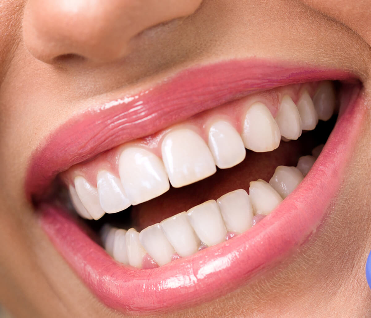 Types of Procedures Offered by a Leading Cosmetic Dentist in Orange County Area