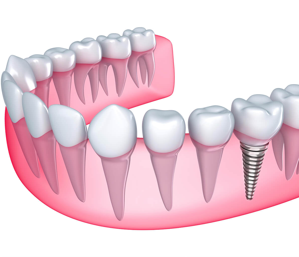 Do You Have Missing Teeth? Visit a Dental Implant Dentist in Laguna Niguel, CA Area
