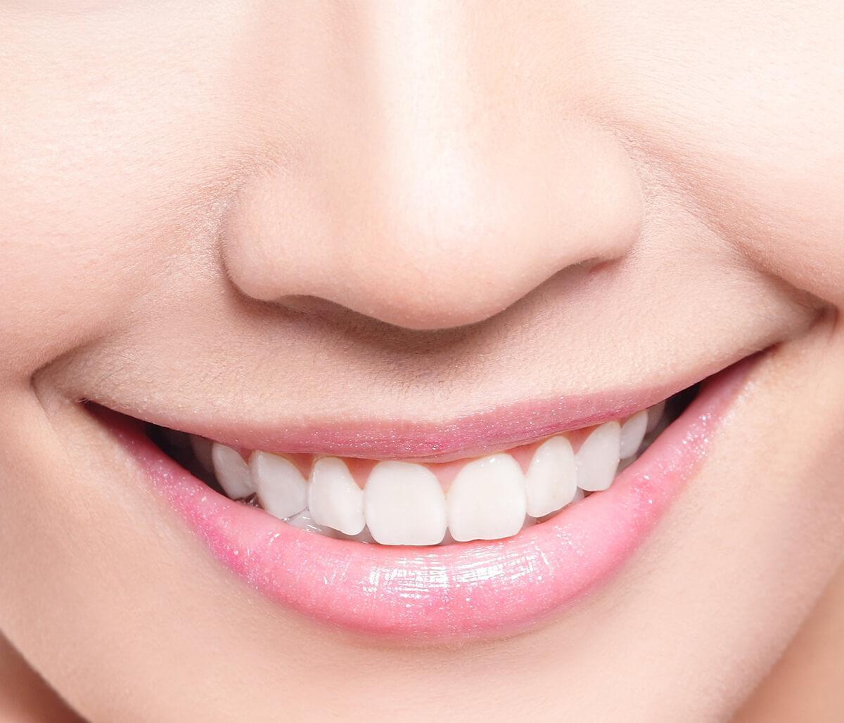 Benefits of Smile Makeover in Aliso Viejo CA Area