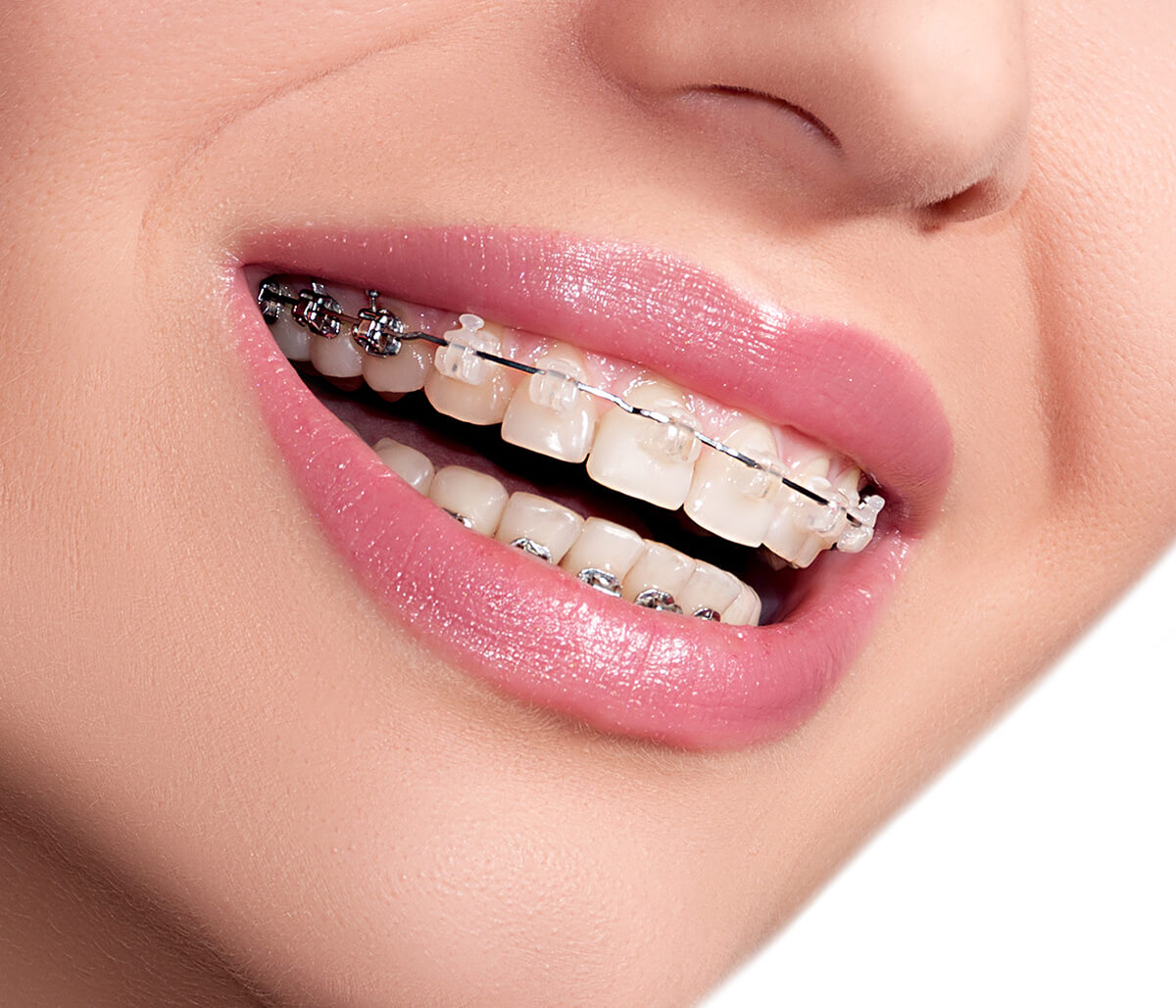 The Process Of Getting Clear Braces In Mission Viejo Area