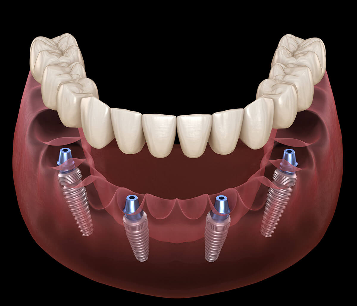 All on 4 Implant Dentist in Aliso Viejo CA Area